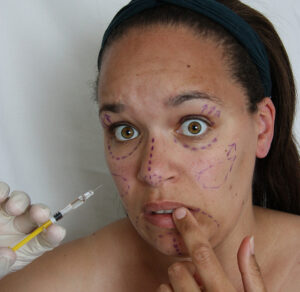 Az arcfelvarrás műtét nélkül is lehetséges